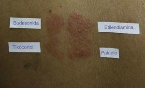 Parches de paciente sensibilizado a otros alérgenos como la etilendiamina y el paladio, además de a los corticoides.