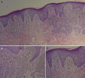 Histopatología: A) Proliferación de melanocitos atípicos con fase de crecimiento radial y vertical, migración intraepidérmica de melanocitos, y nidos y placas irregularesque infiltran la dermis papilar (H&E ×4). B) Células atípicas con núcleos grandes e irregulares, nucléolos evidentes y ocasionales vacuolas intranucleares (H&E ×10). C) Epidermis adyacente con acantosis, espongiosis moderada y exocitosis de linfocitos, junto a un infiltrado inflamatorio mononuclear dispuesto en forma perivascular en la dermis (H&E ×10).