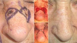 Colgajo de avance triangular de Burow para la extirpación de 2 tumores próximos en el dorso nasal.