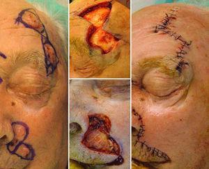 Paciente con múltiples tumores en la cara. Colgajo triangular de Burow para el cierre de los defectos en la sien izquierda. A nivel del pliegue alar izquierdo presenta 3 lesiones extirpadas mediante un colgajo de avance perialar semilunar.