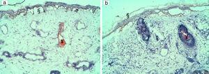 In patients with a darker phototype, severe epidermal damage with full epidermal necrosis (§) was noted with (1a) high fluences (19.4J/cm2) in patient 2 and (1b) lower fluences: 13J/cm2 in patient 7. In these patients, focal intravascular coagulation was also seen (¥). No dermal damage was observed.