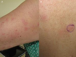 A) Placas eritematosas en la cara externa del brazo. B) Similares lesiones en la región dorsal.