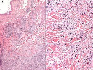 A) Infiltrado inflamatorio dérmico superficial y profundo (hematoxilina-eosina ×4). B) Tendencia a formar granulomas de tipo intersticial, en puntos, y más nodular en otros, sin necrosis fibrinoide, rodeados de linfocitos maduros sin atipia citológica (hematoxilina-eosina ×10).