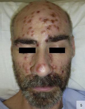 Sífilis pustulosa generalizada. Detalle de la afectación facial (por cortesía de la Dra. Irene Fuertes).