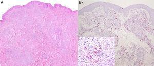 A. H-E 4×. B. Job-Fite 4×. Infiltrados nodulares en la dermis formados de histiocitos con citoplasma de apariencia espumosa, intensamente parasitados por bacilos Job-Fite positivos y escasos linfocitos dispersos. Este denso infiltrado dérmico estaba separado de la epidermis por una banda de dermis sana.