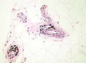 Biopsia que muestra calcificación de la capa media de los vasos del tejido celular subcutáneo (hematoxilina y eosina, ×200).