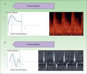 Alto flujo. A. Espectro bifásico. B. Espectro trifásico.