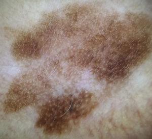 Dermatoscopia de una lesión pigmentada en el rostro. Se observa la pseudo-red específica de localización. La presencia de pigmentación asimétrica de aperturas foliculares sugirió el diagnóstico de lentigo maligno, lo cual fue confirmado por histopatología.