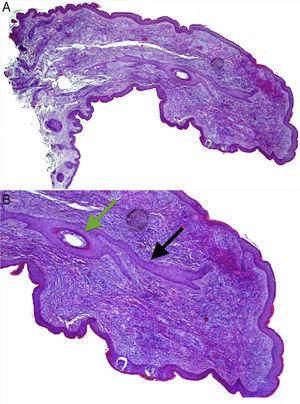 (A) Histopathology of the papule located on the columella. Hematoxylin and eosin, original magnification 20×. (B) A central hair follicle (green arrow) with anastomosing bands of follicular epithelium extending from the central hair follicle into the adjacent stroma (black arrows), compatible with a fibrofolliculoma. Hematoxylin and eosin, original magnification 100×.