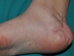 Neurofibroma subcutáneo difuso en el lateral interno del pie de una niña adolescente con NF1. Se observa una cicatriz de extipación parcial del tumor.