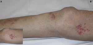 Caso 2. A. Detalle de pápulas eritematosas agrupadas. B. Pápulas eritematosas en la extremidad inferior.