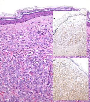Caso 2. A. Hematoxilina-eosina (x200). B. Prosteína (x40). C. PSA (x40).