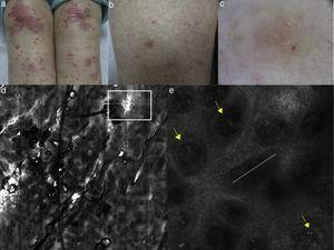 (a, b) Clinical pictures of plaque psoriasis involving lower limbs; (c) typical dermoscopic pattern of psoriasis characterized by red dots and glomerular vessels; (d) RCM Vivablock mosaic taken at the level of the dermo-epidermal junction showing hyperkeratosis (white square) and prominent papillomatosis, diffusely distributed; (e) RCM detail of non-rimmed, enlarged (white line) dermal papillae, increased in number and density separated by thin epithelial septa, and full filled by dilated blood vessels (yellow arrows).