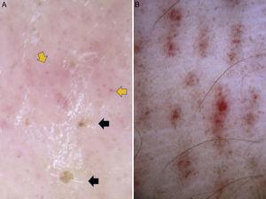 """Dermoscopic findings in Pelagia noctiluca stings. Brownish crust and Linear purpura. (A) Pinpoint brownish crusts (black arrows) and red dots (orange arrows) in a pinkish hue background. (B) """"Linear purpura"""": linear bands composed of red dots regularly spaced in a tabby pattern."""
