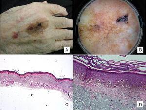 Caso 2: paciente de 88 años de edad, con mácula pigmentada en la mano de años de evolución. A. Mácula pigmentada, asimétrica tanto en morfología como en pigmentación. B. En la dermatoscopia se aprecia pigmentación anular granular en uno de los márgenes, con estructuras romboidales y áreas de regresión. C. Extirpación de una lesión tumoral constituida por una proliferación individual de melanocitos con halo claro sobre una piel con daño actínico (intensa elastosis solar) y atrofia epidérmica (H-E ×20). D. A mayor aumento observamos esta proliferación de células epitelioides que ascienden a capas altas, y fibrosis subepidérmica (H-E ×200).