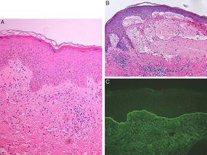 A) Vacuolización de la capa basal epidérmica sin clara formación de vesículas ni ampollas, y presencia de infiltrado inflamatorio dérmico superficial y profundo con linfocitos y eosinófilos aislados (hematoxilina-eosina ×20). B) Ampolla subepidérmica con fibrina y abundantes eosinófilos en su interior, infiltrado dérmico linfoeosinofílico. En la vecindad de la ampolla se observa marcado edema subepidérmico con despegamiento incipiente de la unión dermo-epidérmica (hematoxilina-eosina ×20). C) Inmunofluorescencia directa positiva con depósito lineal de IgG y C3 en la unión dermo-epidérmica.