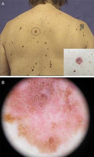 Clínica y dermatoscopia. A) Lesión pigmentada de aproximadamente 1cm, bordes irregulares y heterocroma. B) Patrón globular atípico, con retículo negativo, color rojo, blanco y azul.
