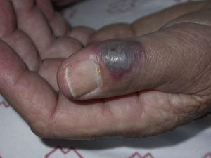 Violaceous plaque on finger.
