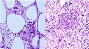 Infiltrate of eosinophils in the fat and flame figure in the dermis.