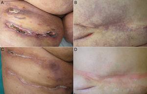 A) Úlceras cutáneas por calcifilaxis en cara anterior de muslos. B) Livedo racemosa y púrpura retiforme en abdomen. C) Curación de las úlceras en cara anterior de muslos, tras el tratamiento combinado con tiosulfato sódico intravenoso y alprostadil. D) Desaparición de la livedo racemosa y púrpura retiforme en abdomen.