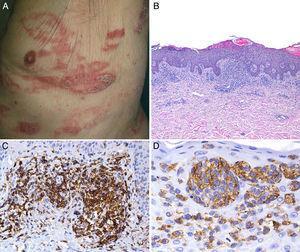 A) Placas eritematodescamativas, infiltradas, de morfología arciforme, localizadas en tronco. B) Denso infiltrado compuesto por linfocitos atípicos con epidermotropismo (H&E ×20). C) Positividad para CD4. D) Positividad para CD30 en el infiltrado epidermotrópico.