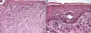 Histopatología, tinción con hematoxilina y eosina. A) Aumento ×10, se observan estructuras glandulares de adenocarcinoma mamario. B) Aumento ×40, se observa la presencia de pigmento en células tumorales superficiales y en dermis superficial.