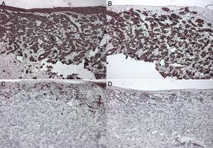 Inmunohistoquímica. A) CK positivo. B) CK7 positivo. C) S100 negativo. D) HMB45 negativo.