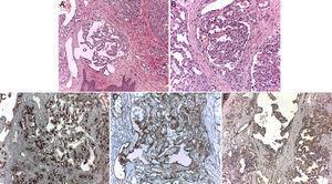 Estudio anatomopatológico de pápula de escote. A) Múltiples formaciones de aspecto glomeruloide a nivel dérmico (hematoxilina-eosina x10). B) Imagen a mayor detalle (hematoxilina-eosina x20). C) Tinción CD 34+ exclusivamente a nivel de los vasos capilares (hematoxilina-eosina x20). D) Tinción CD31+ de vasos sinusoidales y capilares del hemangioma glomeruloide (hematoxilina-eosina x20). E) Tinción VEGF+ presente a nivel de ambos tipos de vasos (hematoxilina-eosina x20).