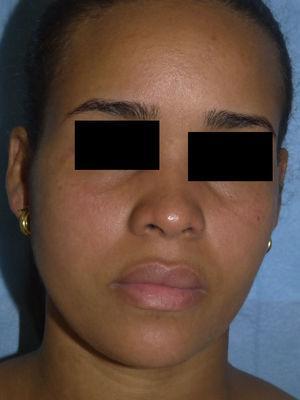 Eritema y edema malar bilateral asociados a inyección conjuntival.