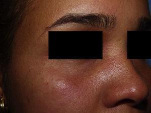 Detalle de la llamativa inyección conjuntival.