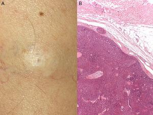 A. Nódulo blanquecino de 25mm, de consistencia dura, desplazable sobre planos profundos, en el muslo izquierdo. B. Hematoxilina-eosina (×4). Proliferación de células basaloides, sin grieta de retracción con el estroma.