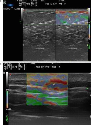 a) Elastografía de strain en un lipoma (L). b) Elastografía de un quiste (Q).