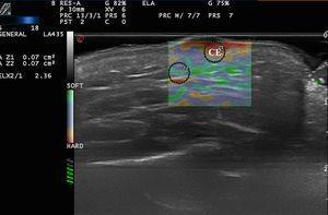 Elastografía de strain en un carcinoma epidermoide en mejilla (CE). El SR=2,36 indica que es más duro que el tejido celular subcutáneo adyacente.