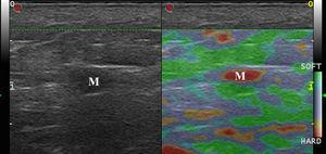 Elastografía de strain en una metástasis ganglionar de melanoma (M). Nótese rigidez completa de la lesión sin zonas blandas.