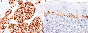 Immunohistochemical study for microphthalmia-associated transcription factor (MITF). (A) Invasive melanoma diffusely positive nuclear labeling in melanocytic lesions with epithelioid melanocytes (magnification 200×). (B) Melanoma in situ, with contiguous proliferation and suprabasal spread of atypical melanocytes (magnification 200×).