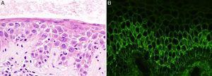 Imágenes histológicas: A) Detalle de espongiosis neutrofílica (hematoxilina-eosina ×40). B) Depósitos intercelulares de IgG (inmunofluorescencia directa).