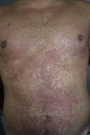 Exantema maculopapuloso eritematoso en tronco.