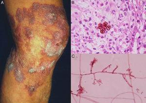 Cromoblastomicosis nódulo-verrugosa (A). Biopsia con células fumagoides (B). Examen directo de cultivo de Fonsecaea pedrosoi (C) (biopsia, tinción H-E y tinción de eritrocina al 2%; Ambas ×40).