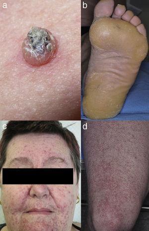 BRAFi induced (a) SCC, (b) plantar keratoderma, MEKi induced (c) acneiform eruption, and BRAFi and MEKi induced (d) folliculitis.