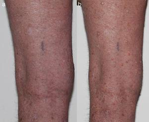 (a) Baseline photo prior to starting BRAFi and (b) multiple VKs on bilateral lower limbs 5 weeks post starting BRAFi.