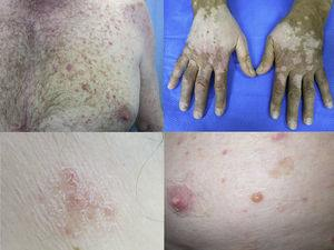 Anti-CTLA4 induced (a) maculopapular exanthema, (b) vitiligo, (c) anti-PD1 induced eczema and (d) bullous pemphigoid.