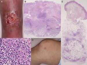 (A) Deep ulcerative lesions on the lower leg. (B) Histological features showing a dense neutrophil infiltrate in the upper to mid-dermis. Hematoxylin and eosin (H&E), original magnification ×40. (C) Higher magnification reveals prominent neutrophil infiltration and extravasation of red blood cells. H&E, original magnification ×400. (D) Painful, subcutaneous erythematous nodules on the knee. (E) Histology shows cellular infiltrates most intense in the subcutaneous septa. H&E, original magnification ×40.