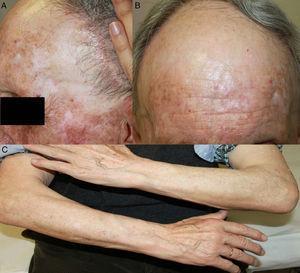 A y B) Retroceso de implantación del pelo frontal y temporal, con una piel más fina y pálida, y oclusión de las aperturas foliculares. C) Alopecia de antebrazos.