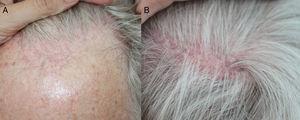A) Retroceso de la línea de implantación del pelo, con eritema e hiperqueratosis perifolicular. B) Áreas parcheadas de alopecia cicatricial parietal típicas de LPF.