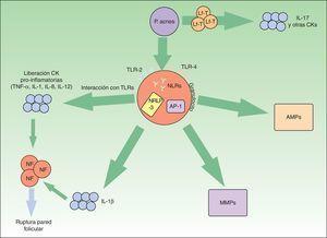 Vías inflamatorias implicadas en la patogénesis del acné vulgar. Propionibacterium acnes puede interactuar directamente con los linfocitos T (Lf-T) y favorecer la liberación de citoquinas inflamatorias como la interleucina17. Asimismo, a través de los receptores TLR-2 y 4 de las células inflamatorias perifoliculares se favorece la síntesis de otras citoquinas inflamatorias. El inflamasoma NRLP-3 juega también un papel relevante en la producción de la IL-1β. La liberación de todas estas citoquinas proinflamatorias al medio extracelular conduce a la rotura de la pared folicular mediada por células inflamatorias. P.acnes también induce un incremento de varias metaloproteasas (MMPs) a través del factor de transcripción «proteína activadora-1» (AP1). Estas enzimas intervienen activamente en la destrucción tisular y cicatrización. Por último, la bacteria es capaz de producir una activación inveterada de péptidos antimicrobianos (AMPs) que perpetúan el microambiente inflamatorio.