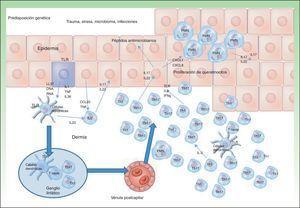 Modelo de patogenia de la psoriasis.