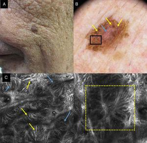 a) Imagen clínica en la que se aprecia una lesión pigmentada en un varón de 80 años. b) Imagen dermatoscópica con abundantes estructuras romboidales azul-grisáceas (flechas amarillas) y vascularización (flecha azul). c) Imagen con MCR en el área del recuadro negro por dermatoscopia de 1×1mm que muestra en la unión dermoepidérmica engrosamientos junturales con células atípicas (flechas amarillas); también se observa la disposición de las células dendríticas formando puentes que constituyen estructuras que simulan mitocondrias (flechas azules). d) Imagen por MCR de 1×1mm en la que vemos su disposición alrededor del folículo simulando una cabeza de medusa (recuadro amarillo).