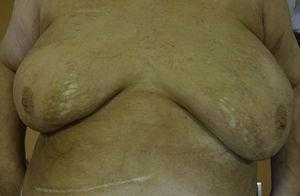 Patches in both breasts and left inframammary fold, showing a shinny white color, liliaceous ring and atrophic surface.