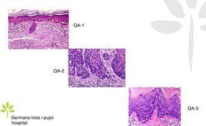 Gradación histopatológica de las queratosis actínicas.