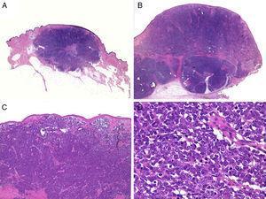 Estudio histológico. A y B: panorámica de un carcinoma de células de Merkel. Tumor bien delimitado, no encapsulado, nodular (A y B:hematoxilina-eosina, x10). C: tumor localizado en la dermis constituido por células redondas, basófilas y monomorfas (hematoxilina-eosina, × 100). D: las células son redondas, azules, con escaso citoplasma y núcleo con cromatina fina y granular. En el tumor se observan numerosas figuras mitósicas (hematoxilina-eosina, × 400).